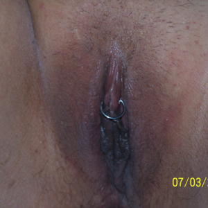 Body Piercing